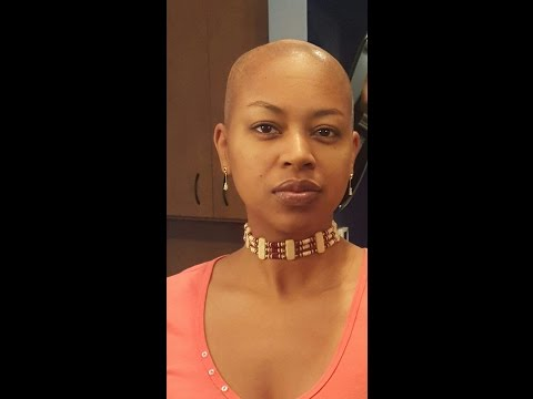 My Hair Journey (with Scarring Alopecia)