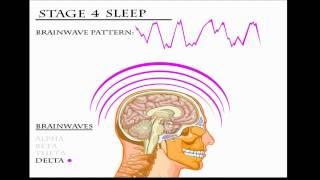 REM Sleep Aspects