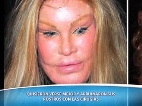 De Película (07-04-2013): Celebridades y Cirugías.