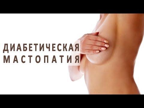 Что нужно знать о диабетической мастопатии