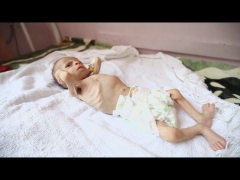 ООН: 1,4 млн детей - на грани голодной смерти (новости)