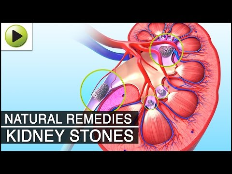 Kidney Stone - Natural Ayurvedic Home Remedies