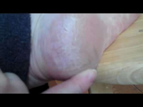 Scratching Dry Heel ** Foot Fetish video