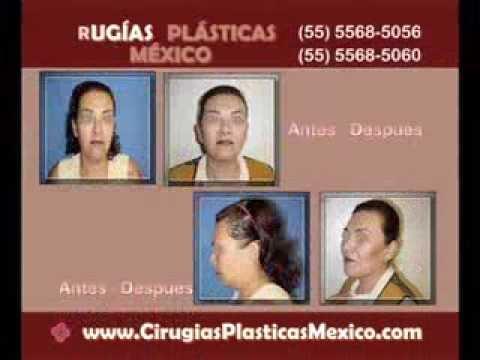 Cirugías Plásticas México - Cirugía de Papada
