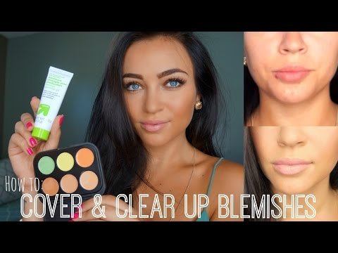 How to: Cover & Clear Up Blemishes