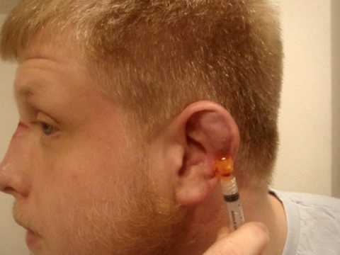 iMMAfighter: Draining cauliflower ear