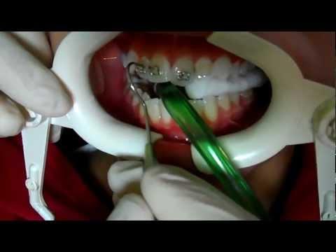 diş teli nasıl takılır? Dr. Özgür Zileli .Ortodontist.