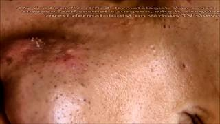 Dr. Sandra Lee!  Dr. Pimple Popper Bizarre Facts