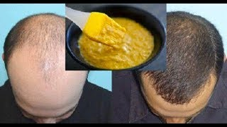 تقویت و پرپشت شدن موی سر