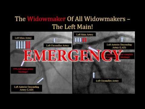 Widowmaker Heart Attack