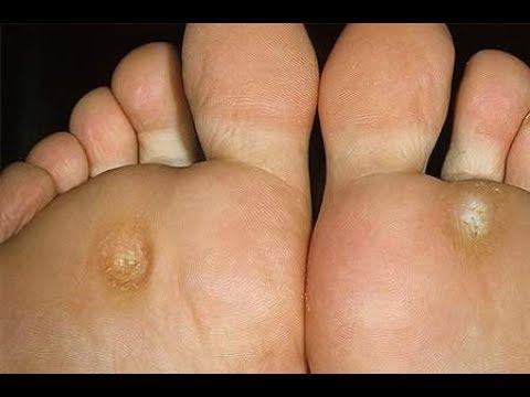 0 - Лікування мозолів на ногах народними засобами