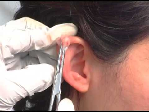 Ear Helix Bleeding Demonstration for Neck Pain -- Online Acupuncture CEU