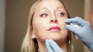 Btx and dermal fillers injections in Montreal by doctor Mandeville