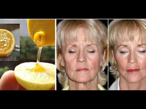 Как выглядеть на 10 лет МОЛОЖЕ с помощью Лимона и Меда! Легко и просто..