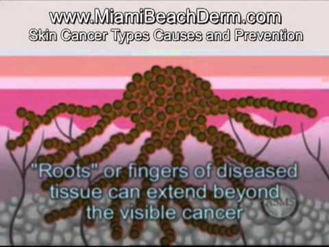 Skin cancer types treatment: melanoma basal cell carcinoma, squamous cell carcinoma