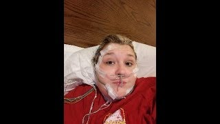 Sleep Study - VSG - Gastric Sleeve - Weight Loss Surgery - Required Appointments
