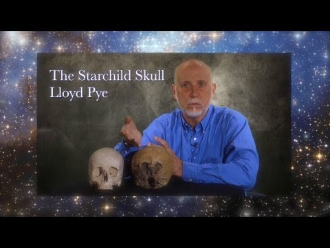 Starchild Skull DNA is Alien - Lloyd Pye