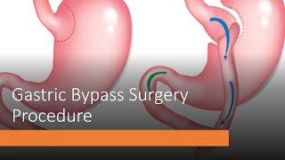 Gastric Bypass Surgery Procedure