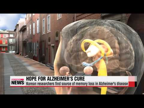 Korean researchers find cause of memory loss in Alzheimer's