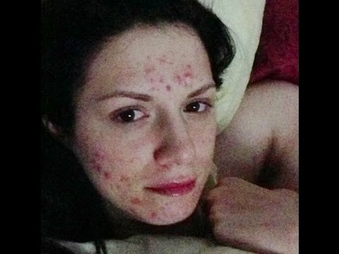 GETTING RID OF SEVERE CYSTIC ACNE HYPERPIGMENTATION ACNE SCARS, TREATMENT
