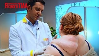 Женщина лечила огромную опухоль горячим луком - Я соромлюсь свого тіла - 19.03.15