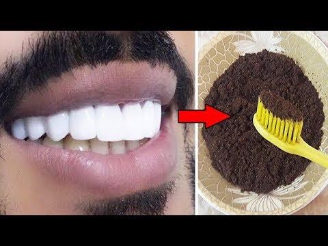 ضعها على الأسنان كل يوم واقسم بالله النتيجة سوف تبهرك أسنان بيضاء كانك قمت بعملية تبييض الأسنان