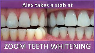 ZOOM TEETH WHITENING REVIEW | ALEX TAKES A STAB AT: TEETH WHITENING