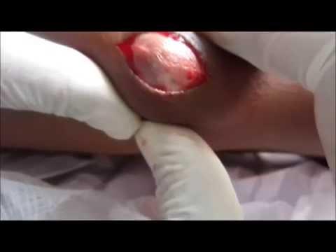 Sebaceous Cyst On Arm