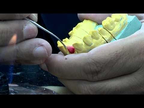 Cofias Enterizas / Cofias con cajuelas Protesis Fija 1