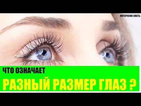 Что означают глаза разного размера?