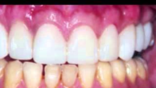 [port orange dentist] Video