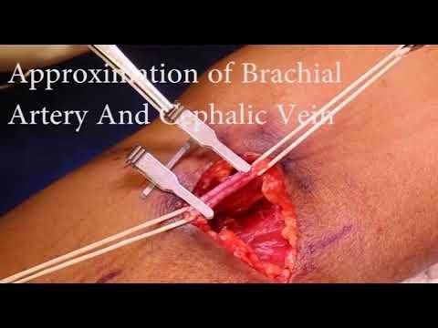 Brachial Artery To Cephalic Vein Arteriovenous Fistula(Brachicephalic Fistula) by Dr.Arunesh Gupta thumbnail