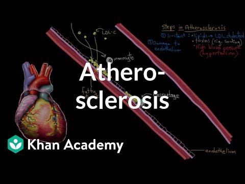 Atherosclerosis (VIDEO)