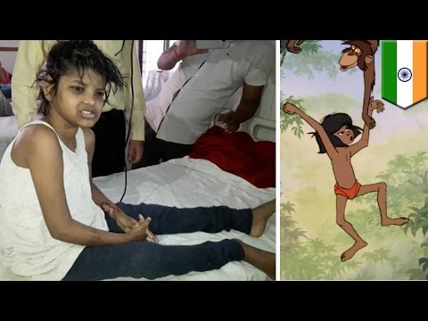 Gadis kecil ditemukan hidup dengan monyet, tak bisa bicara dan berjalan merangkak - Tomonews