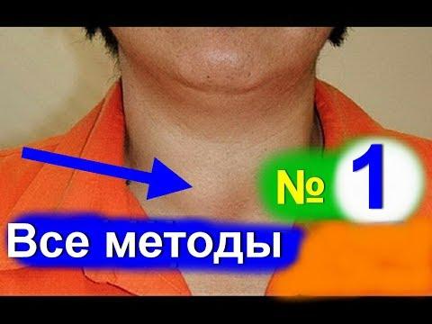 Лечение щитовидной железы.Узловой Зоб. Как лечить щитовидку народными средствами - №1