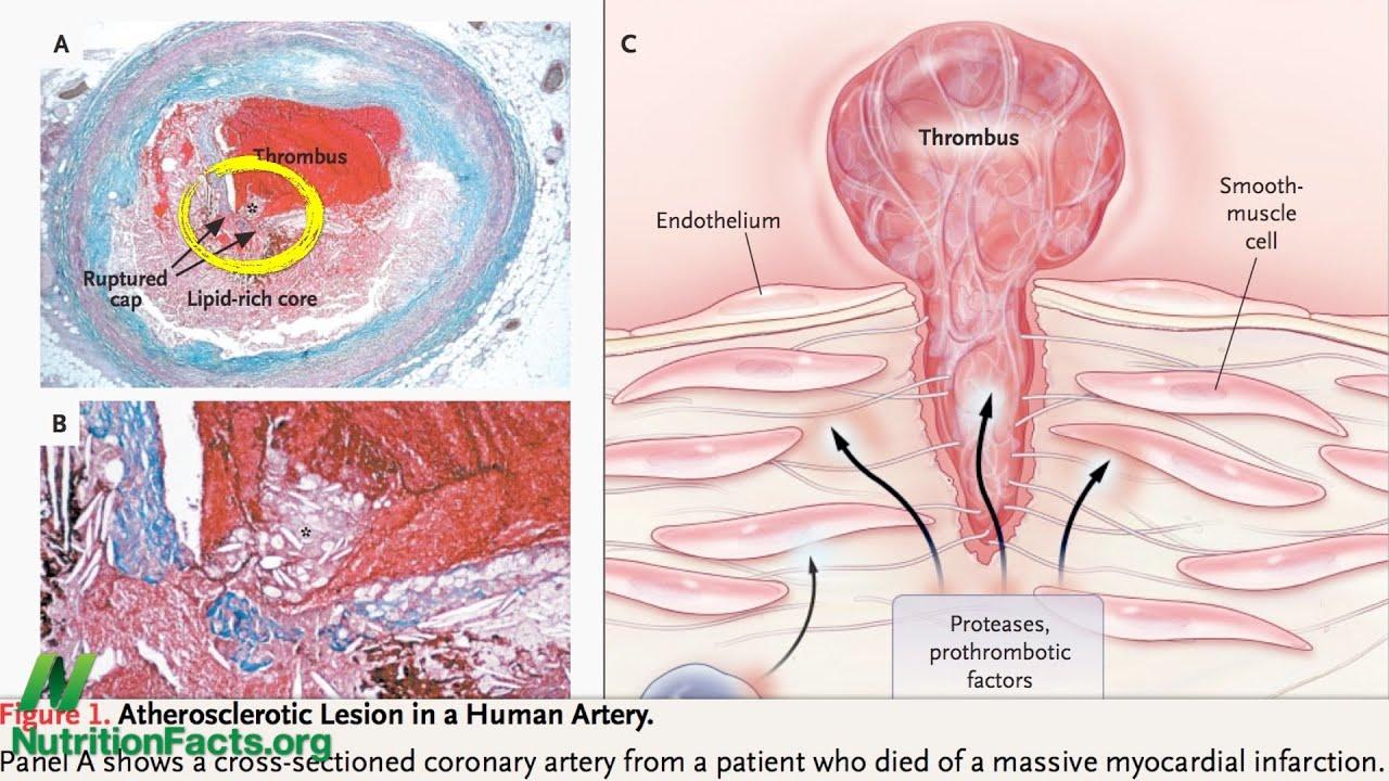 Arterial Acne