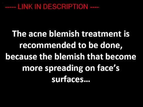 Acne Blemish Treatment   Acne Treatment