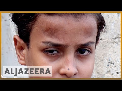 The Yemenis living in graveyards as battle rages
