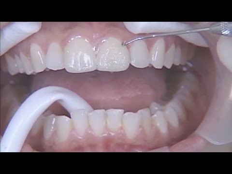 Prep & No-Prep Comprehensive Porcelain Veneer Techniques