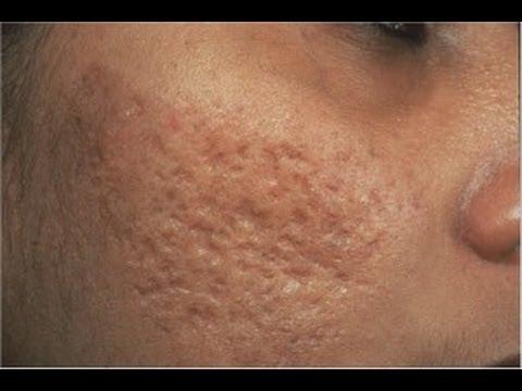 DermTV - Removing Acne Scars [DermTV.com #61]