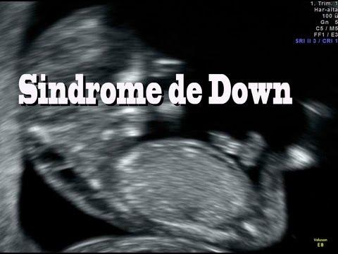 Sindrome de Down diagnostico prenatal higroma quistico 12 semanas Dr. Rafael Ortega Muñoz