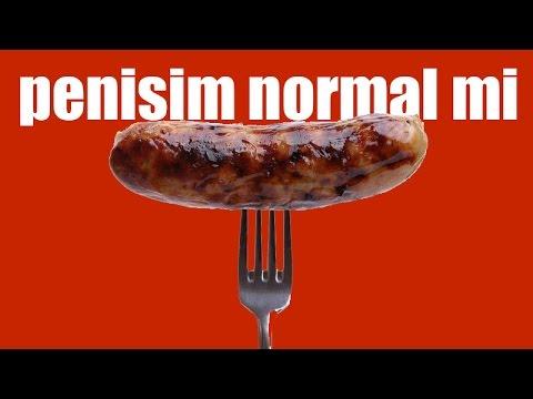 Is my penis normal?