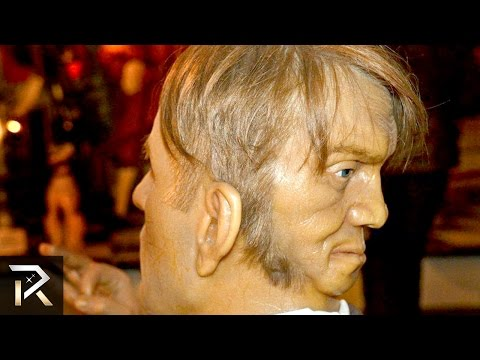 10 Unusual People Born With Extra Body Parts