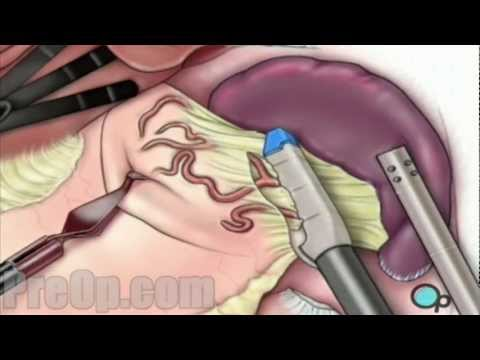 Spleen Removal Laparoscopic Splenectomy Patient Education