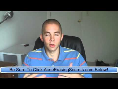 Dermatologist Recommended Acne Treatment - Clear skin advice