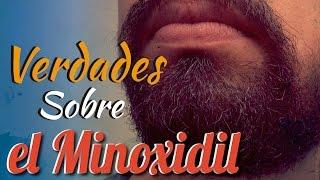 Las Verdades del Minoxidil