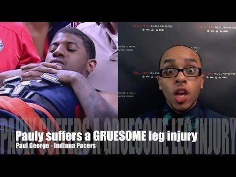 TEA: TOUGH TOPIC Paul George's broken leg, LeBron & Cavs, Lance Stephenson PLUS MORE INJURIES!