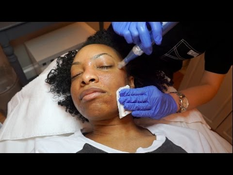 HOW I MINIMIZED MY PORES IN 24 HOURS!!!   Microneedling Experience