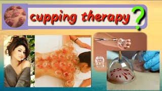 Cupping therapy/best therapy for body