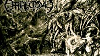 Watch Cephalectomy Dragons Upon The Mountains Of Mashu video